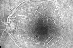 Imagen de CCS por Angiografía