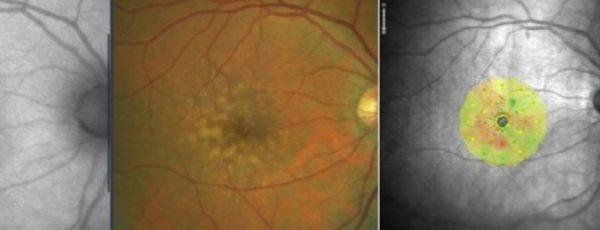 Analizamos distintas pruebas de imagen para obtener una mayor capacidad diagnóstica. En la imagen de la derecha observamos la MICROPERIMETRÍA, seguida por una retinografía en la que observamos drusas blandas confluentes, y por último la AUTOFLUORESCENCIA, prueba metabólica. Los colores alejados del verde indican anormalidad en el funcionamiento de la mácula ante un estímulo, a pesar de ser un paciente con agudeza visual de la unidad precisaría tratamiento ya que su sensibilidad retiniana  y agudeza visual de bajo contraste está fuera de la normalidad.