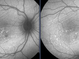 Autofluorescencia del paciente una semana después del tratamiento. A la izda. podemos observar una mínima cicatriz extrafoveolar. Se confirma la eficacia del tratamiento.