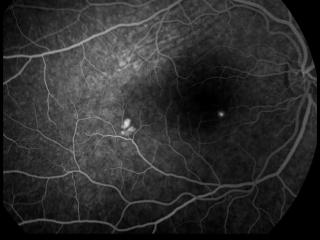 Angiografía fluoresceínica con la que se ha guiado el tratamiento Navilas 577 nm