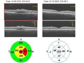 Podemos ver que el paciente el 16 de septiembre, antes del tratamiento tiene un milímetro central de 455 µm y cómo gracias al tratamiento con 2RT pierde 203 µm en el milímetro central volviendo a recuperar el perfil normal foveolar.